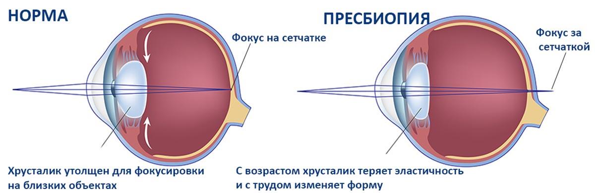Пресбиопия, или возрастная дальнозоркость — нарушение, связанное со снижением аккомодационной способности зрительных органов